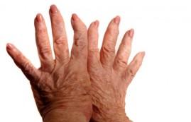 thumb_shutterstock-arthritis-hands